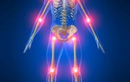 آرتروز لگن ،علائم و درمان